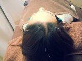 美容鍼灸(はりきゅう)