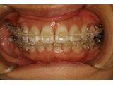 神田ふくしま歯科の成人矯正治療 急速増骨矯正法
