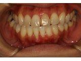 神田ふくしま歯科では歯ぐきの再生治療にこだわりがあります.