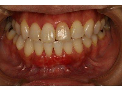 神田ふくしま歯科の歯ぐきの再生治療