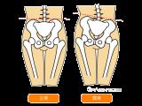 骨盤・背骨の歪み診断 / 無料