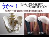 tm式骨盤矯正