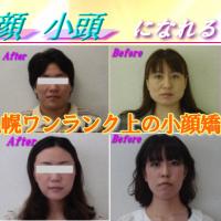 札幌の小顔専門 弘俊整体院