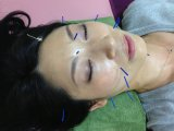 美容鍼灸と皮膚 その4