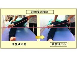 骨盤矯正 集中改善3回コース