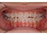 歯科矯正モニターキャンペーン
