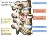 神経干渉を取り除く専門家