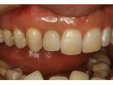 神田ふくしま歯科のこだわりの審美歯科治療