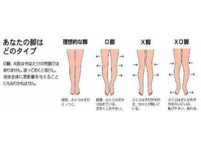 O脚・X脚矯正コース