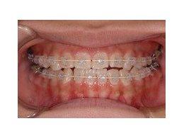 歯の矯正モニター治療