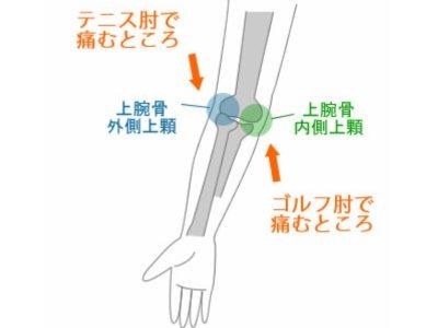 目から鱗の肘痛テーピング矯正で改善力No1