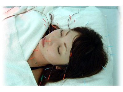 美容鍼灸(美容鍼)|東京都渋谷・恵比寿のヒデ鍼灸院